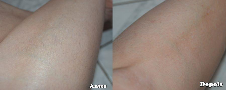 depilart premium antes e depois
